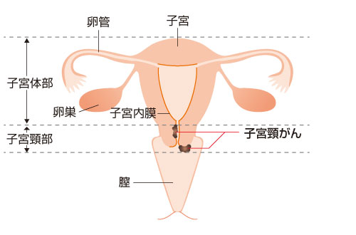 おり る 子宮