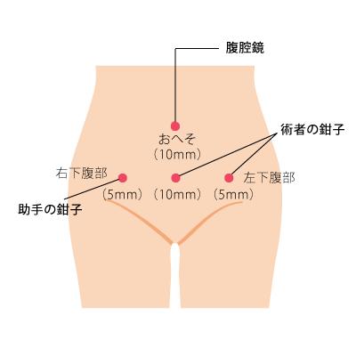 子宮筋腫の腹腔鏡下手術~その利点と難点 前編 | インタビュー | 子宮 ...